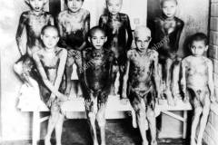 A group of children in Auschwitz. The children have fallen victims of medical experiments and their bodies are covered with burns. EN: